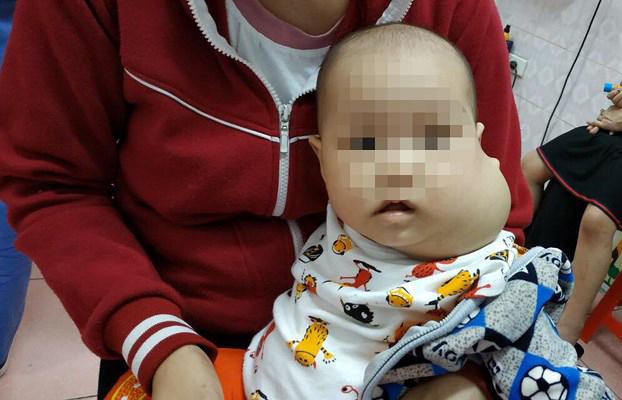 Khối u 'khổng lồ' khiến mặt bé 8 tháng tuổi biến dạng Ảnh 1