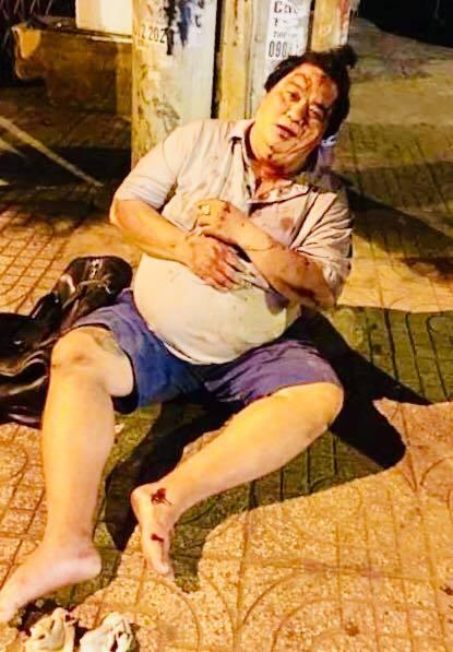 Nghệ sĩ hài Hoàng Mập bị tông xe phải nhập viện Ảnh 1