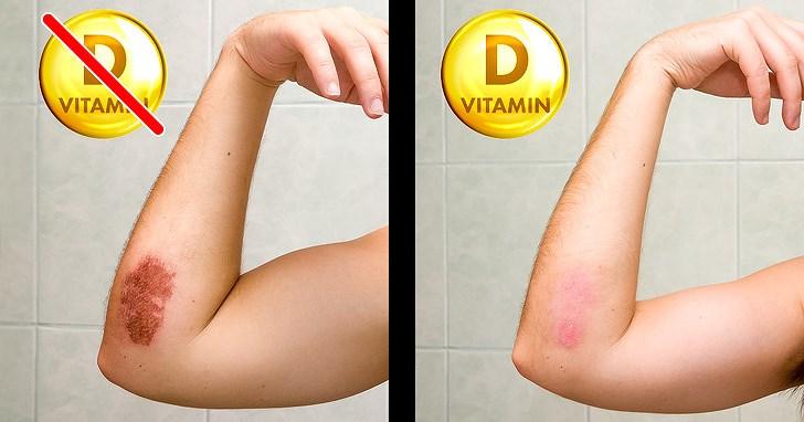 8 dấu hiệu của cơ thể nhắc nhở bạn cần bổ sung ngay vitamin D Ảnh 6
