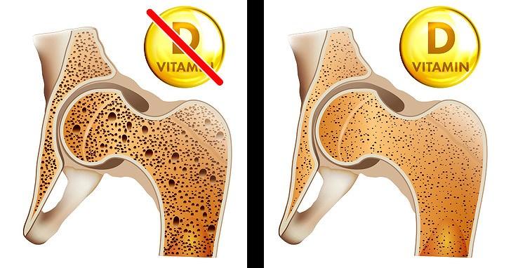 8 dấu hiệu của cơ thể nhắc nhở bạn cần bổ sung ngay vitamin D Ảnh 2