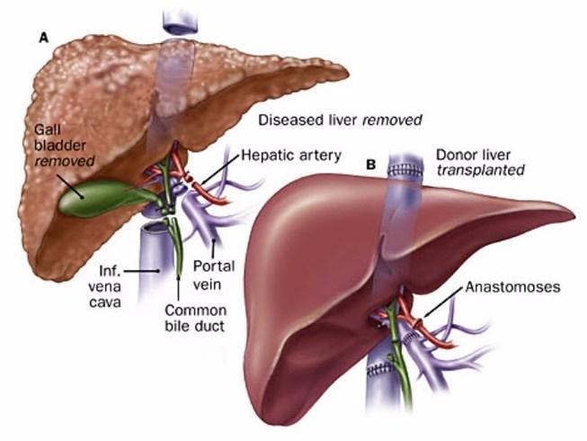 Ung thư gan tước đoạt mạng sống khoảng 24.000 người/năm, gấp đôi tai nạn giao thông ảnh 1