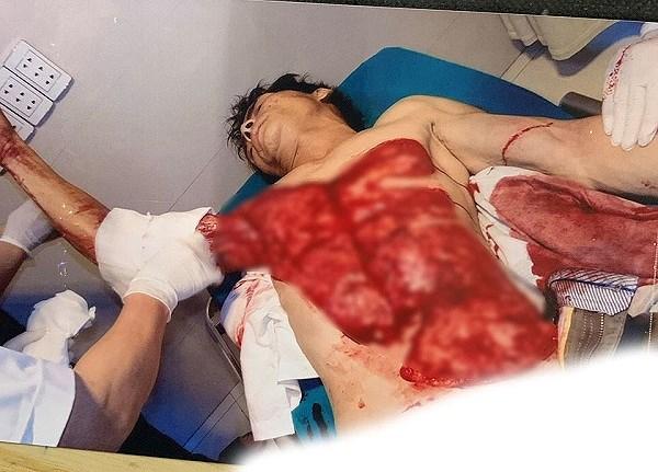 Rùng mình nam công nhân bị máy bóc gỗ lột toàn bộ da ngực, bụng ảnh 1