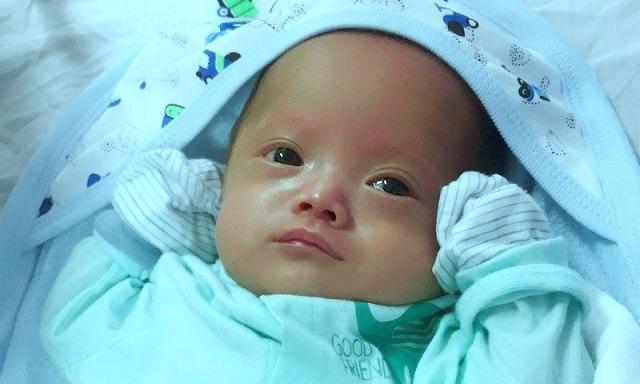 Hành trình nuôi sống trẻ sinh non 25 tuần tuổi nặng 800 gram Ảnh 1