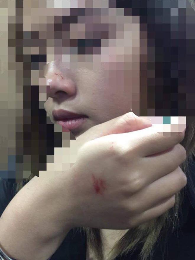 Gã 'dê xồm' cưỡng hôn nữ sinh trong thang máy liên tục hủy cuộc hẹn xin lỗi, nạn nhân muốn xử lý theo pháp luật Ảnh 2