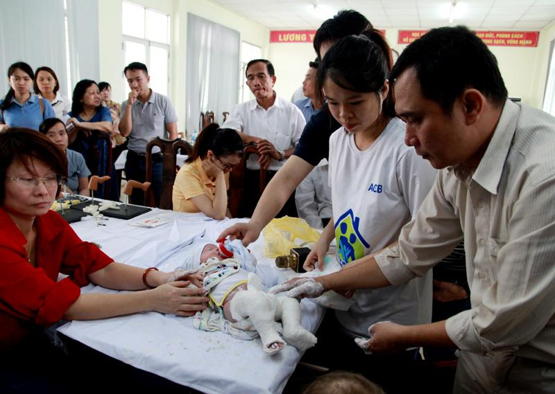 Bệnh viện Chỉnh hình - Phục hồi chức năng Hà Nội: Phẫu thuật miễn phí cho hàng trăm trẻ khuyết tật vận động Ảnh 5