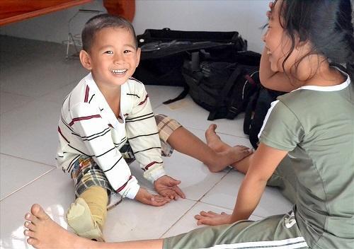 Bị văng ra khỏi bụng mẹ, mất một chân sau vụ tai nạn thảm khốc, thai nhi ở An Giang thay đổi ra sao sau 3 năm? Ảnh 7