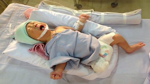 Bị văng ra khỏi bụng mẹ, mất một chân sau vụ tai nạn thảm khốc, thai nhi ở An Giang thay đổi ra sao sau 3 năm? Ảnh 1