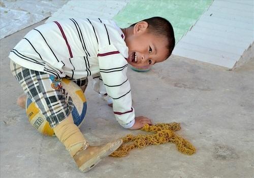 Bị văng ra khỏi bụng mẹ, mất một chân sau vụ tai nạn thảm khốc, thai nhi ở An Giang thay đổi ra sao sau 3 năm? Ảnh 10