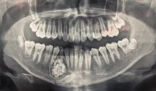 Lấy gần 100 cái răng trong miệng thiếu niên ở Khánh Hòa Ảnh 1