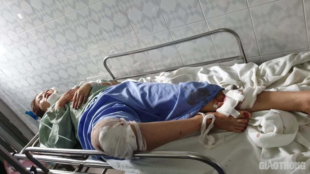 Em gái tử vong, chị bị thương nặng trong vụ tai nạn thảm khốc ở Hòa Bình Ảnh 1