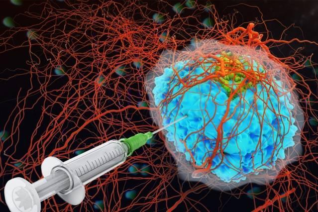 Mỹ thử nghiệm thành công loại 'keo dán' trong điều trị ung thư Ảnh 1