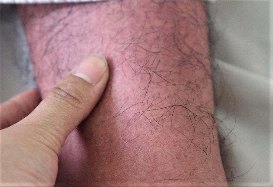 Dịch sốt xuất huyết vào mùa, TP.HCM có 5 ca tử vong vì bệnh Ảnh 2