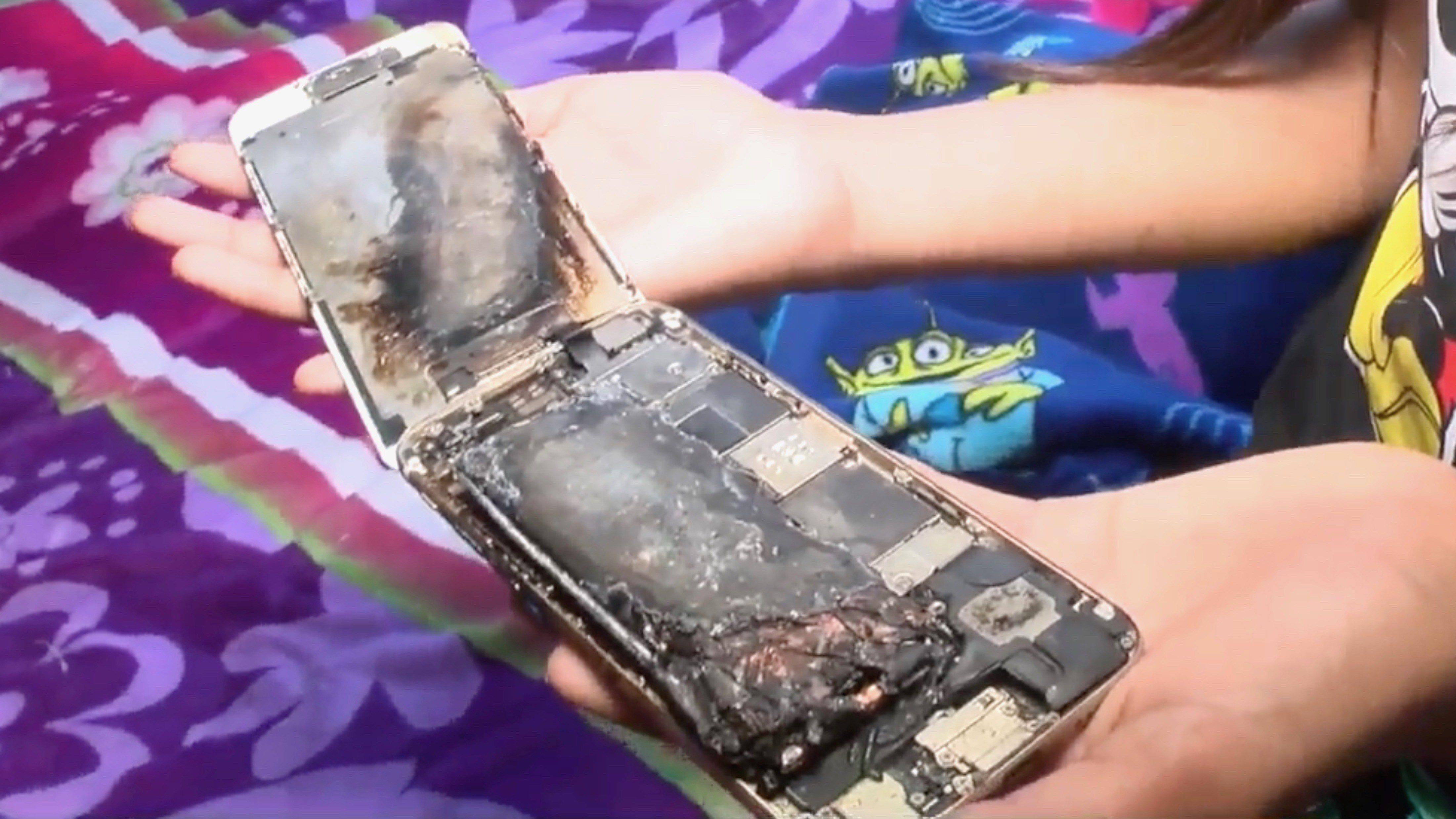 iPhone 6 bốc cháy trên tay bé gái 11 tuổi