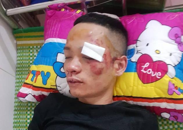 Hai thanh niên vô cớ bị nhóm đối tượng đánh nhập viện ở Nga Sơn Ảnh 1