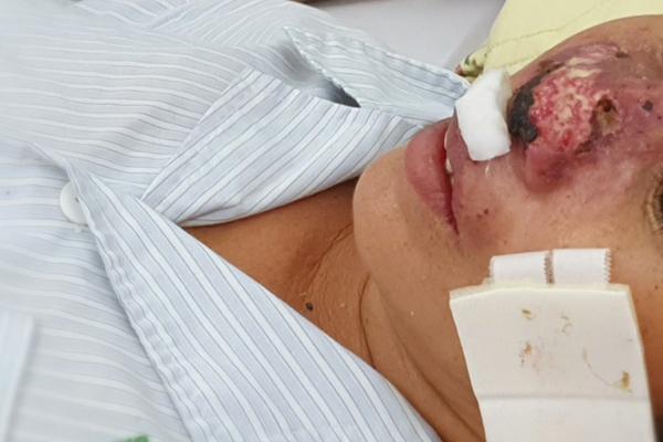 Hàng chục người nhập viện Bạch Mai do nhiễm vi khuẩn ăn thịt người Ảnh 1