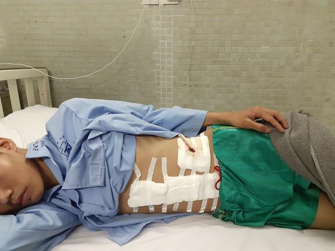 Vừa vào TP HCM tìm việc sau bão lũ, chàng trai miền Trung mất cả lách tụy Ảnh 1