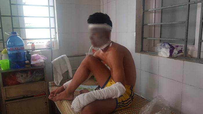 Nổ chùm bóng bay, 3 cầu thủ Sông Lam Nghệ An bị bỏng nặng Ảnh 2