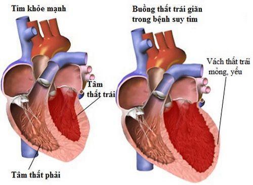 Biến chứng nhồi máu cơ tim khiến NSND Thế Anh đột ngột qua đời nguy hiểm ra sao? Ảnh 2