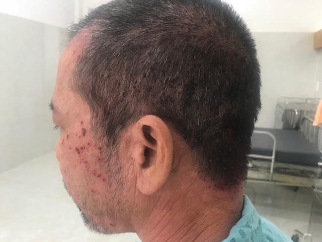 Sưng tấy toàn bộ da đầu vì thuốc nhuộm tóc Ảnh 2