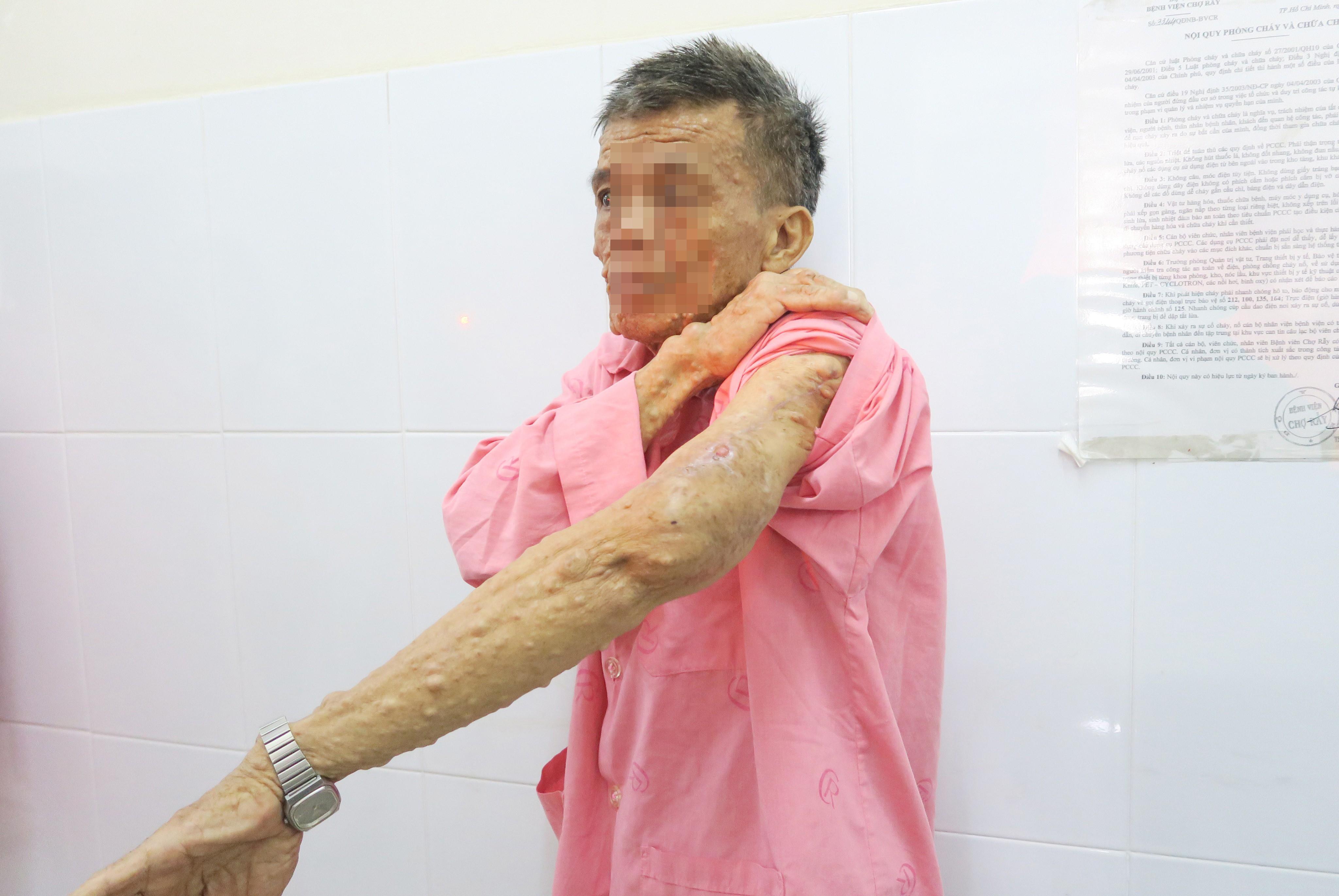 Cắt bỏ khối bướu sợi thần kinh khổng lồ khỏi cơ thể người đàn ông Ảnh 4