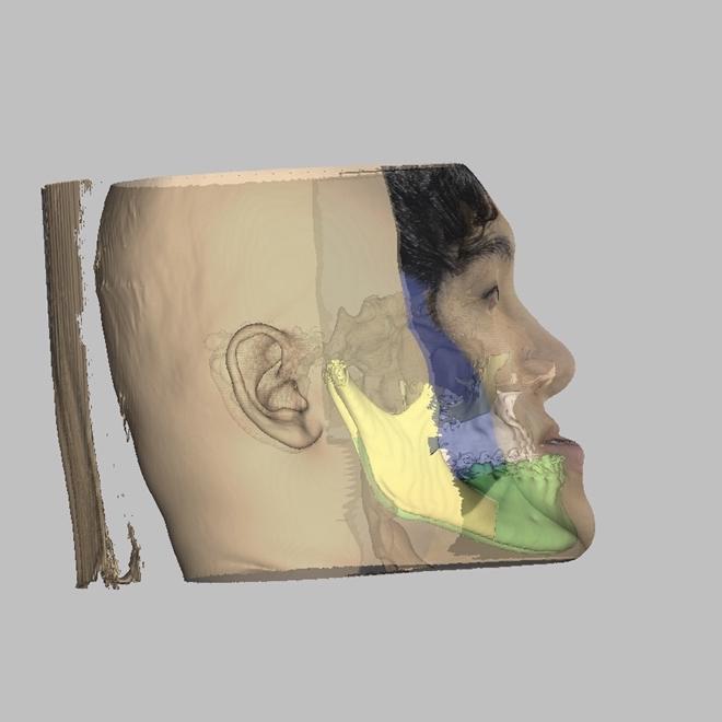 Ứng dụng phần mềm 3D cắt chỉnh xương hàm mặt Ảnh 2