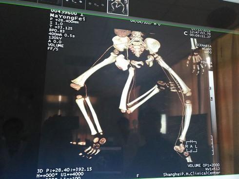 Em bé sinh ra đã có 3 chân ở Trung Quốc Ảnh 1