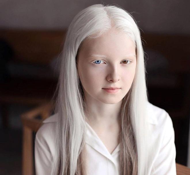Vẻ đẹp khác lạ của cô gái bạch tạng có 2 màu mắt Ảnh 7