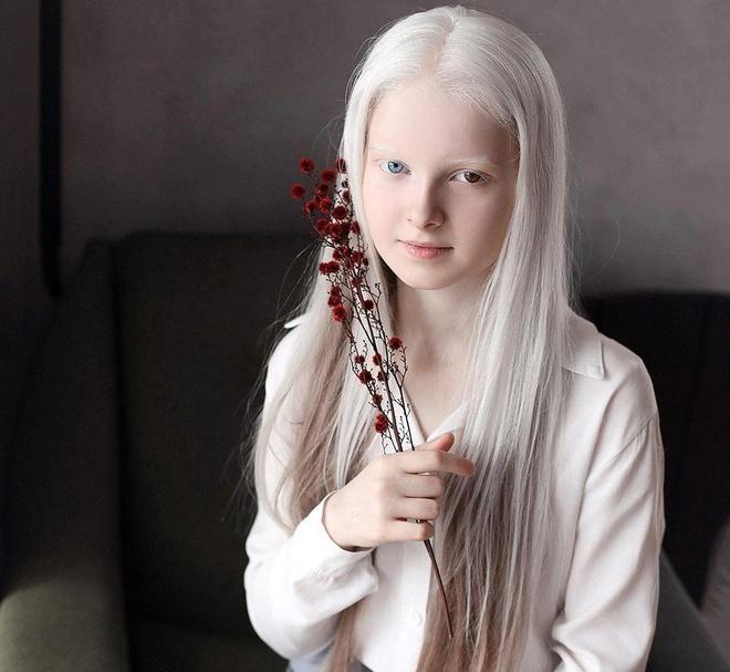 Vẻ đẹp khác lạ của cô gái bạch tạng có 2 màu mắt Ảnh 6