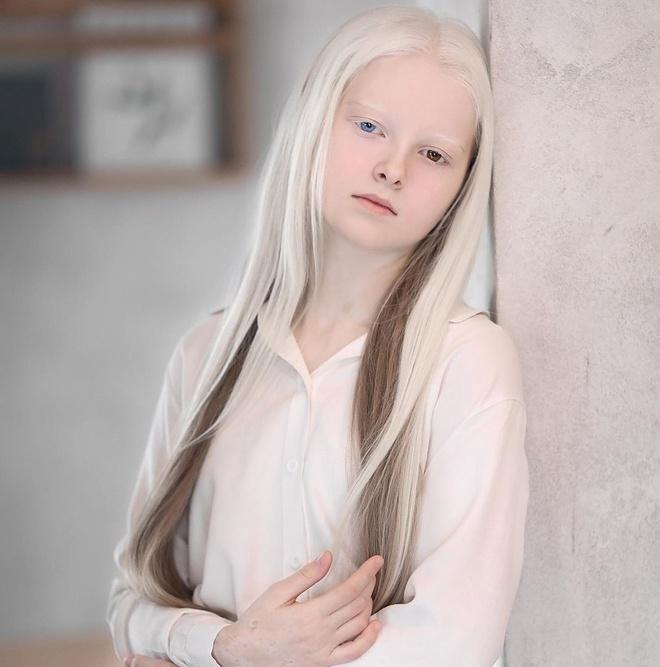 Vẻ đẹp khác lạ của cô gái bạch tạng có 2 màu mắt Ảnh 1