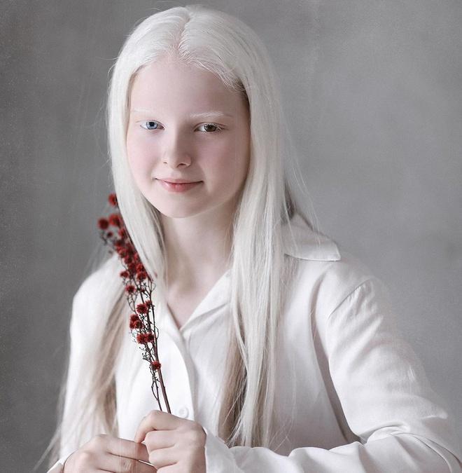 Vẻ đẹp khác lạ của cô gái bạch tạng có 2 màu mắt Ảnh 3