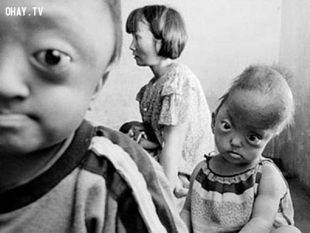 Ánh Mắt Ngây Thơ Hiện Diện Trên Gương Mặt Khốn Khổ Đến Cùng Cực Của Những  Đứa Trẻ Sinh Ra Từ Người Bố Bị Nhiễm Chất Độc Da Cam/Dioxin.