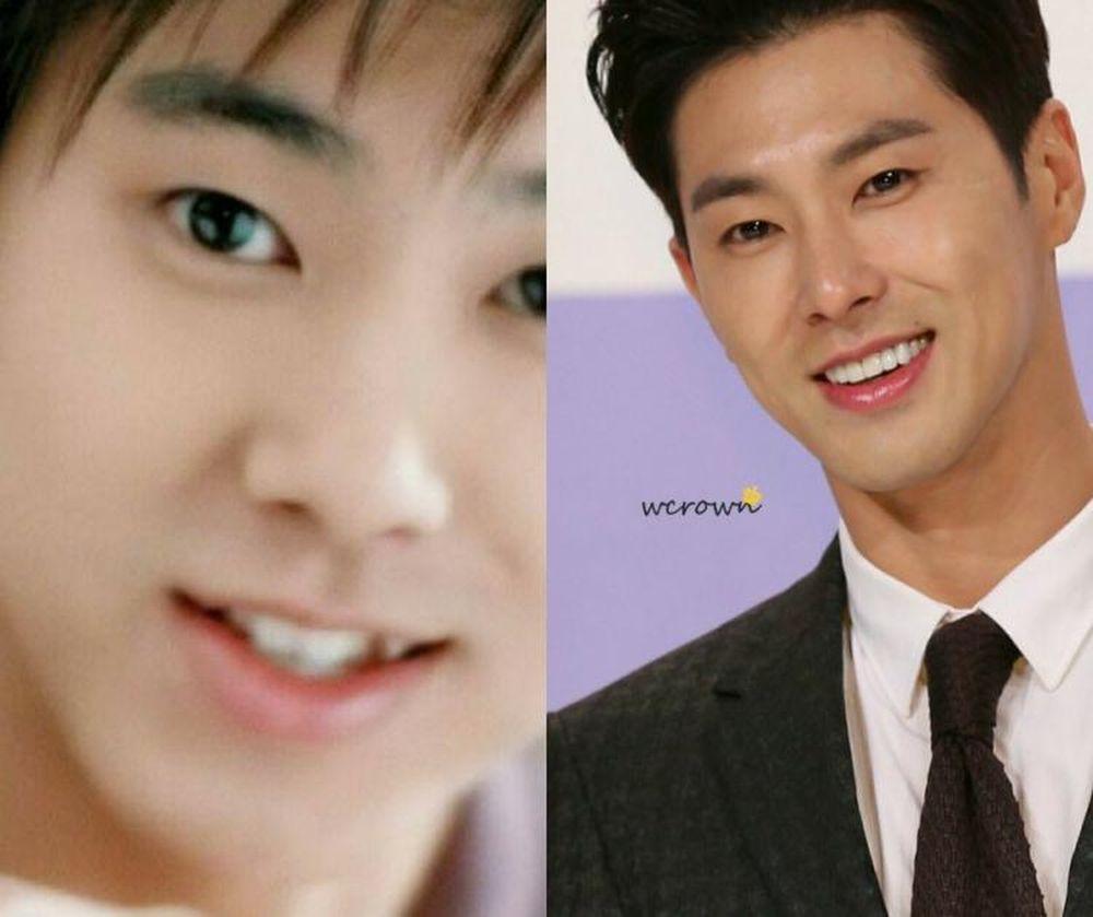 Yunho (DBSK) khi mới ra mắt trông rất xinh trai với chiếc răng khểnh. Nhưng anh chàng đã chỉnh lại răng để xây dựng hình ảnh nam tính lịch lãm hơn.
