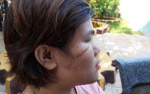 Bắt khẩn cấp nghi phạm dùng dao rạch mặt một nữ công nhân