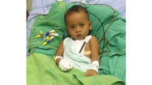 Phẫu thuật thành công cho bé 1 tuổi bị hở van 2 lá nặng