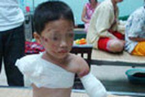 Bé trai 5 tuổi bị gấu cắn đứt 2 tay