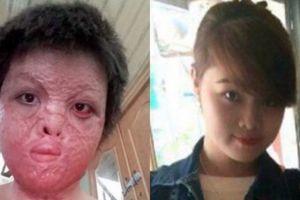 Bộ Y tế đề nghị hỗ trợ điều trị cho cô gái bị chồng tẩm xăng đốt