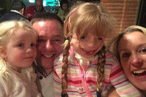 Gặp em bé 'hạnh phúc nhất thế gian' dù khuôn mặt biến dạng sau 29 lần phẫu thuật