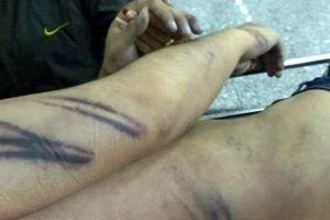 Bắt giam 2 công an đánh chết bị can trong nhà giam