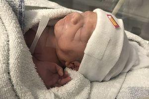 Em bé chào đời kỳ diệu dù tử cung mẹ bị rách