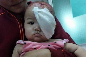 Nỗi xót xa của bà mẹ nghèo khi hàng ngày chứng kiến con 7 tháng tuổi mắt bị nổ tung vì căn bệnh quái ác