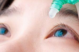 Phát hiện thuốc nhỏ mắt mới có thể khiến người mắc tật khúc xạ không phải đeo kính