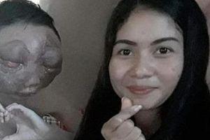 Cảm động cô gái nhất quyết ở bên bạn trai bị ung thư biến dạng mặt