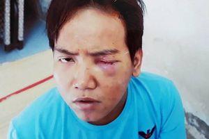 Bảo vệ dân phố sát hại bé trai 6 tuổi ở TP HCM mất nhận thức khi gây án