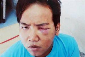 Bảo vệ dân phố sát hại bé trai 6 tuổi ở Sài Gòn mất nhận thức khi gây án