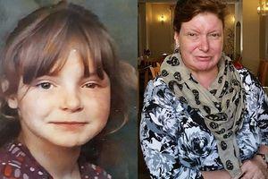 Người phụ nữ không thể cười suốt 3 thập kỷ: Khổ sở và đau đớn