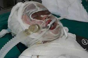Rơi xuống hố vôi, bé 3 tuổi bị bỏng toàn thân