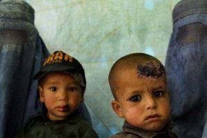 Kỳ quái bệnh nhiệt đen ở những vùng IS chiếm đóng tại Syria, Iraq