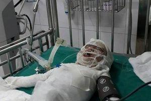 Cháu bé hơn 2 tuổi ngã vào hố vôi đang sôi ở Nghệ An đã qua đời