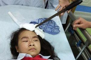 Học sinh THCS cầm dao phi trúng đầu bạn nữ cùng lớp