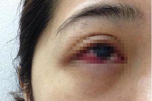 Cô gái nhiễm trùng mắt do nối mi giả